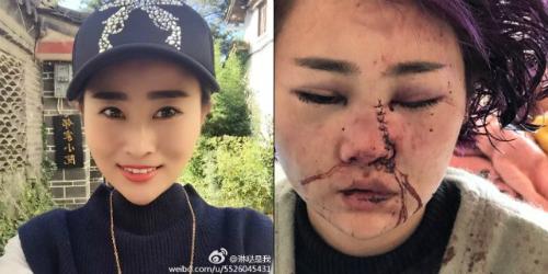 Hình ảnh trước và sau vụ hành hung dã man của nạn nhân. Ảnh: Shanghaiist.