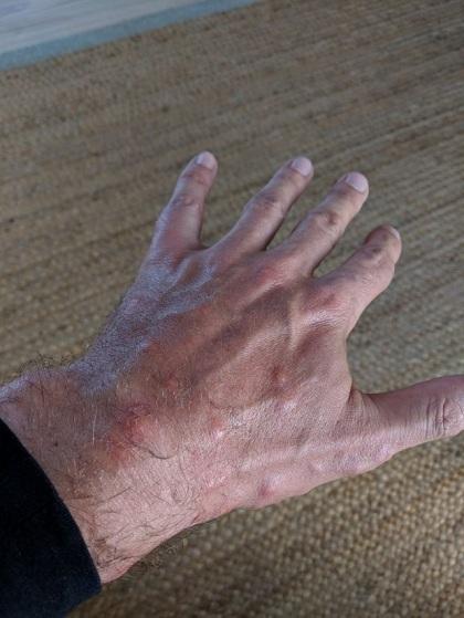 Mike chụp lại những vết cắn trên tay. Ảnh:MikeGregory.