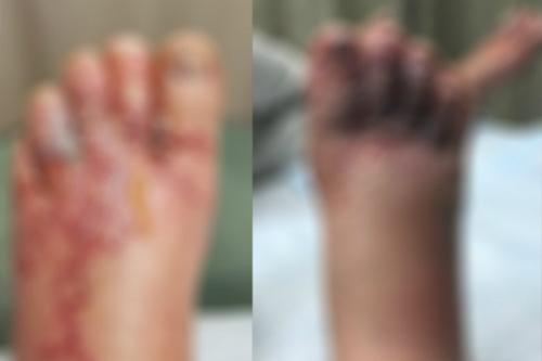 Chân của hai du khách bị phồng rộp, thâm đen sau khi đi chân trần trên bãi cát ở Dominica. Ảnh: CTVNews.