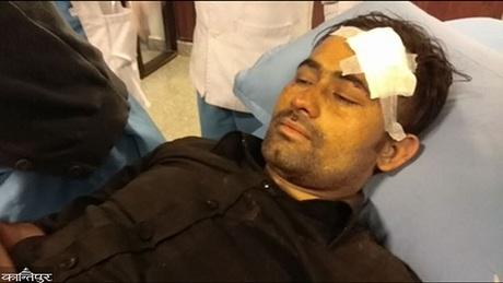 Basanta Bohora được cấp cứu tại bệnh viện ở Nepal. Ảnh:Kathmandu Post.