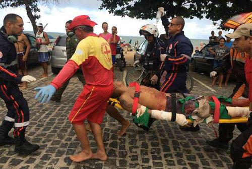 Chàng trai mất chân vì cá mập cắn khi lướt sóng ở Brazil - ảnh 1