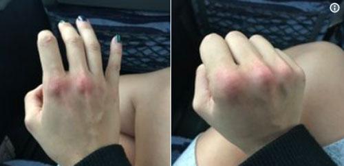 Leanna bị đỏ tay sau khi đấm kẻ quấy rối. Ảnh: News.