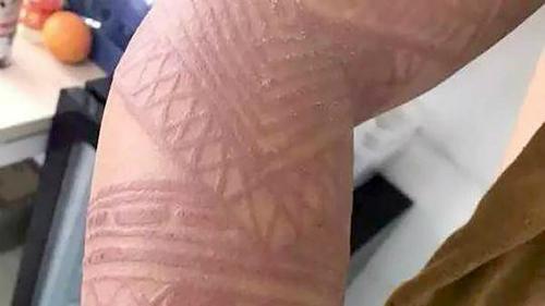 Hình xăm thường biến mất sau vài ngày nhưng nếu dùng mực giả để vẽ có thể để lại sẹo vĩnh viễn. Ảnh: SCMP.