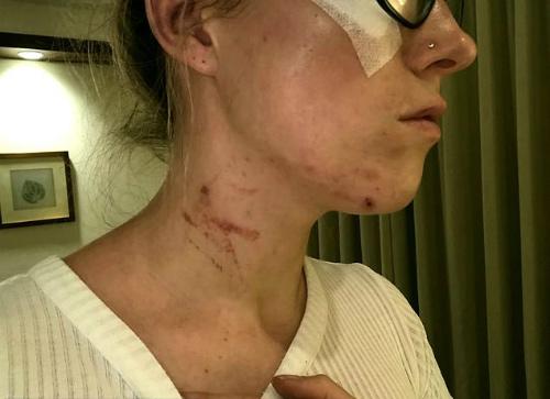 Nữ du khách người Anh phải khâu 7 mũi vì bị hai cô gái Trung Quốc tấn công. Ảnh:Alexandria Mackintosh.